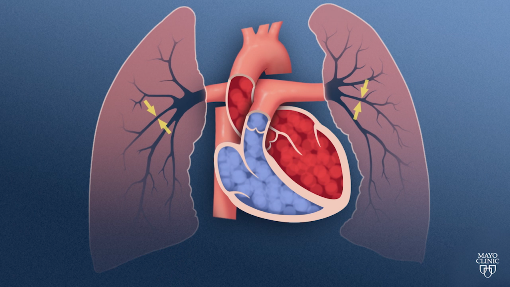 Pulmonary hypertension is a disorder of the lungs that affects the way blood is pumped and circulated.