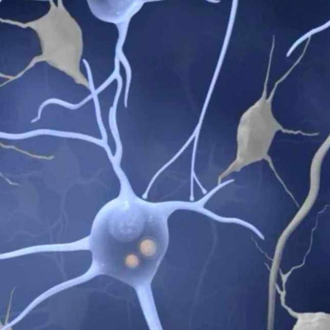 lewy body dementia medical illustration