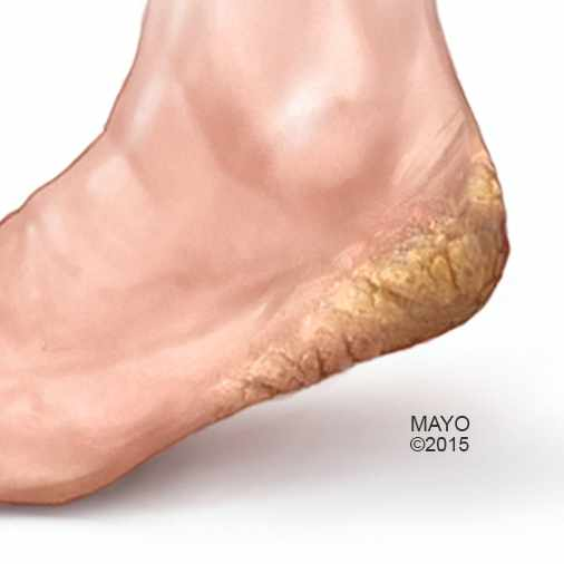 medical illustration of foot with cracked skin on heel