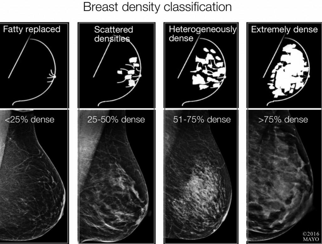 breast densitiy classification xrays and images