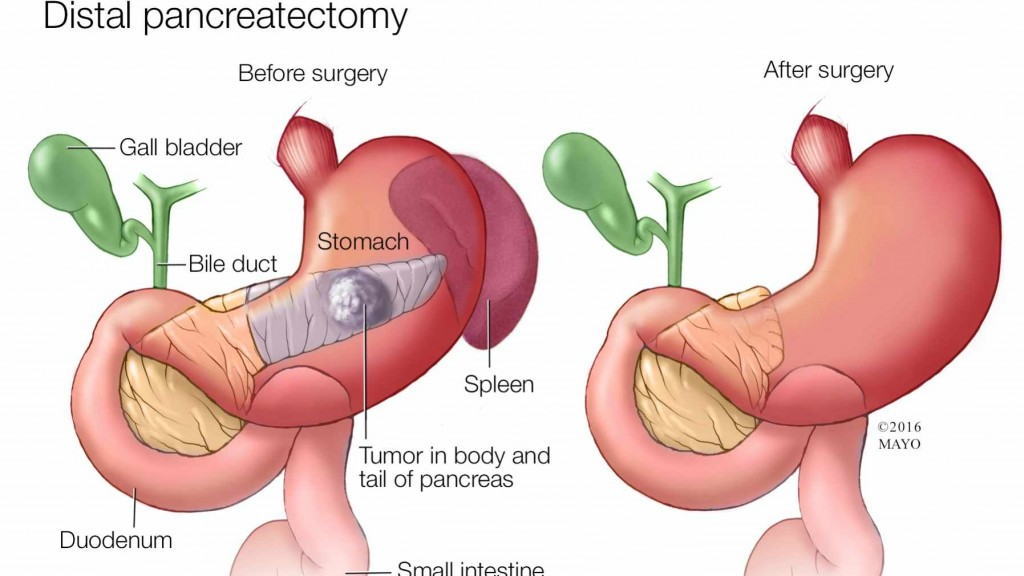 medical illustration of distal pancreatectomy