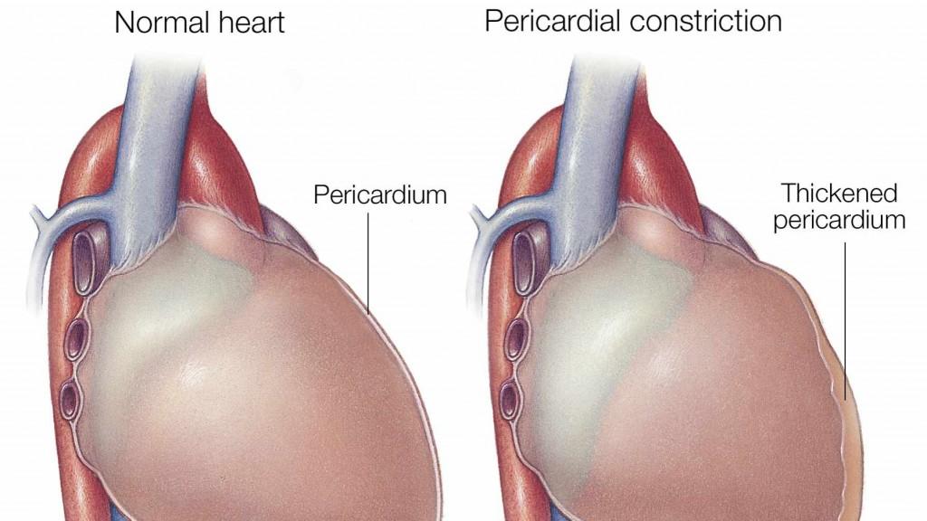 Ilustración médica de un corazón normal sobre la izquierda y de otro con constricción pericárdica sobre la derecha.