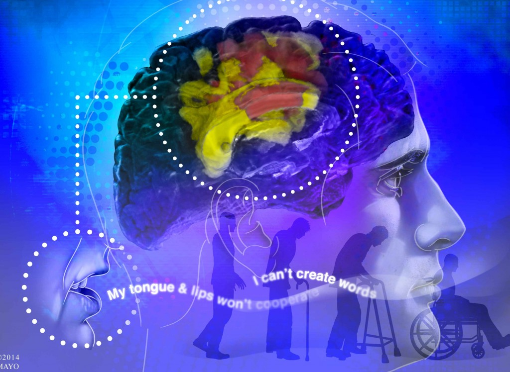 Ilustración del cerebro con un trasfondo del envejecimiento y del deterioro humano