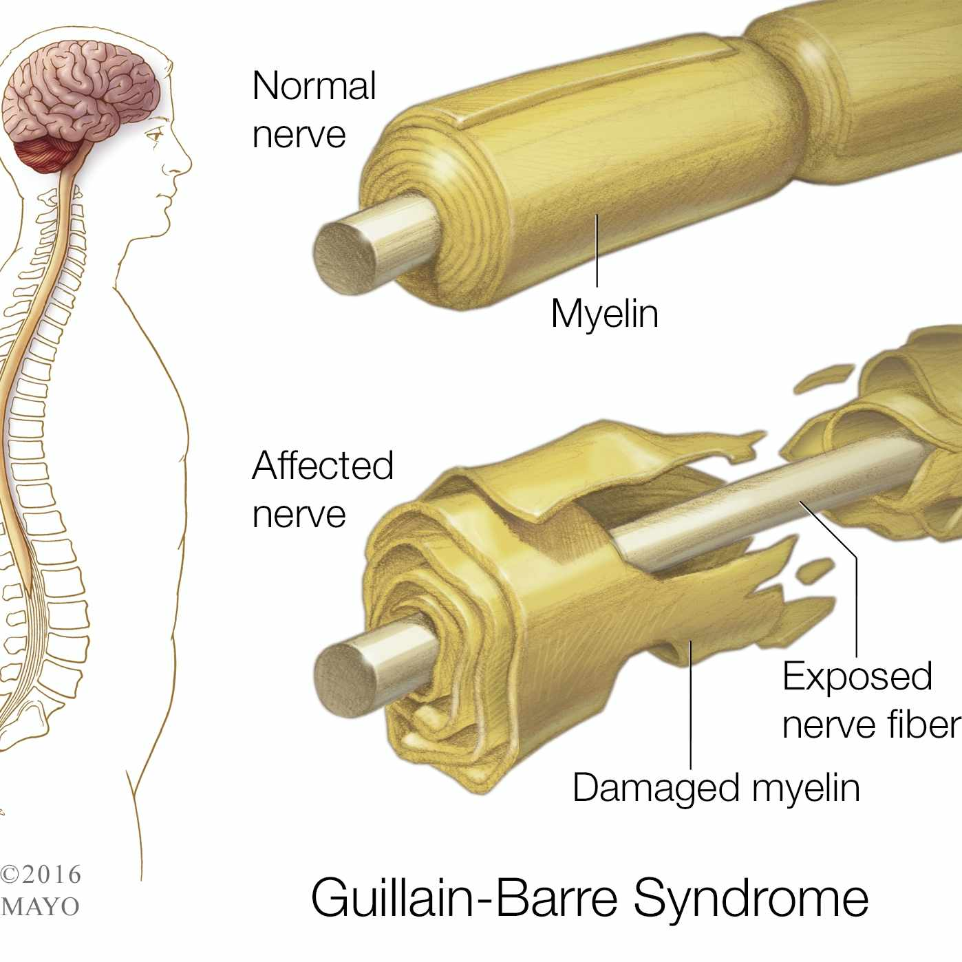a medical illustration of a normal nerve and a damaged nerve in the spine, Guillain-Barre Syndrome