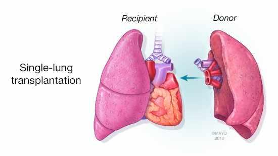 a medical illustration of single-lung transplant