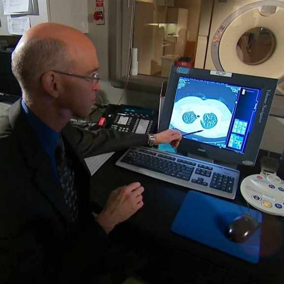 doctor looking at image of lung on computer