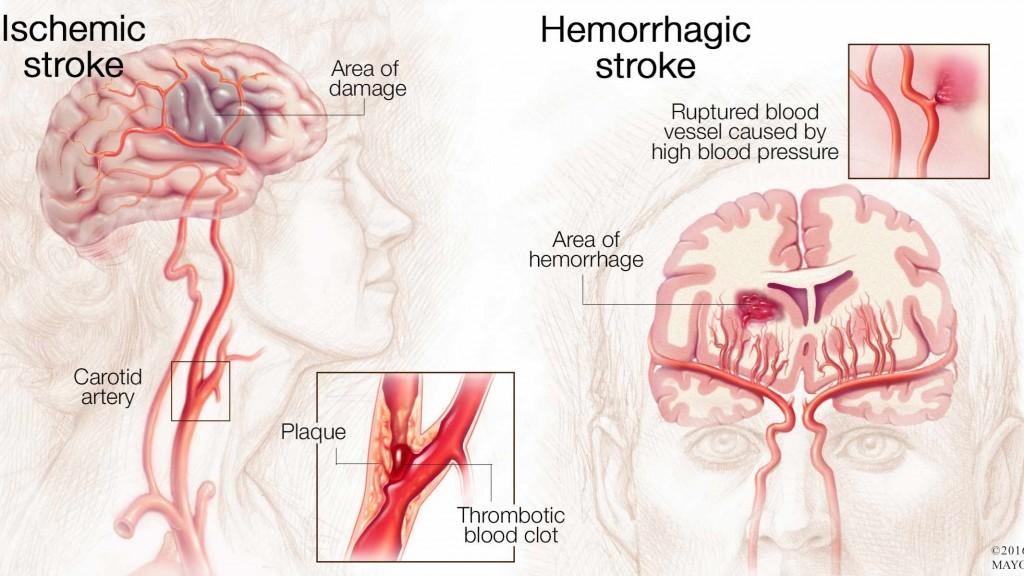 medical illustration of brain with ischemic stroke and hemorrhagic stroke