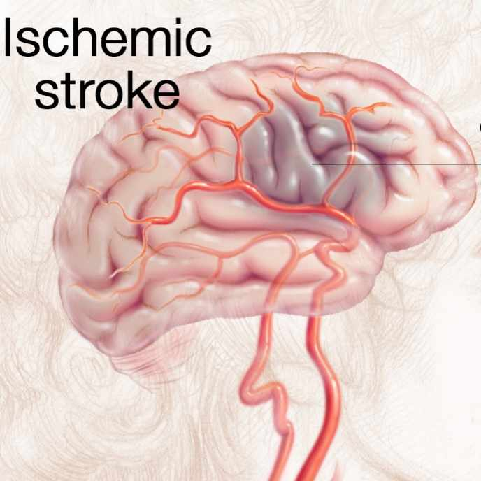 medical illustration of brain with ischemic stroke