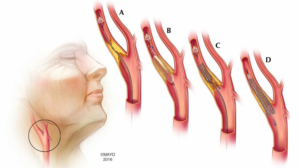 Ilustración médica de la colocación del estent en la arteria carótida