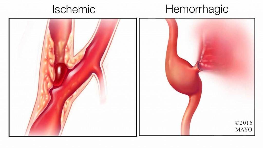 medical illustration of ischemic stroke and hemorrhagic stroke