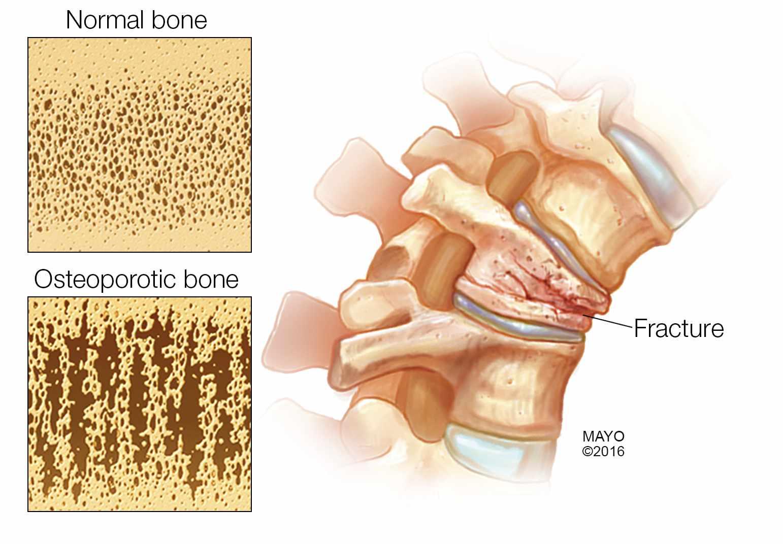 medical illustration of fractured bone, osteoporosis
