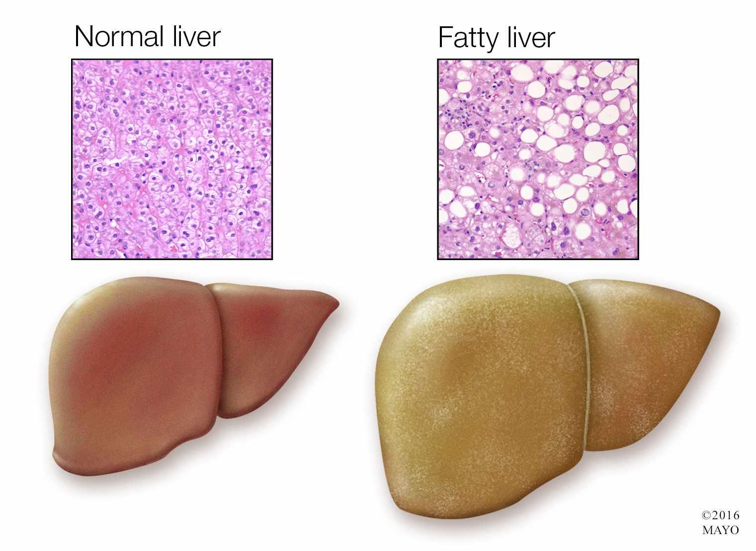 Ilustración médica de un hígado normal (izquierda) y un hígado graso (derecha)