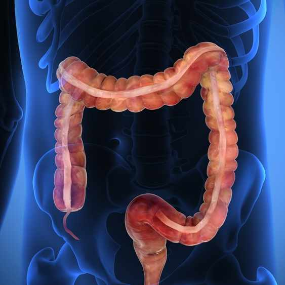 illustration of colon on top of x-ray of body