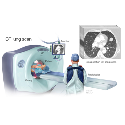 medical illustration of CT lung scan