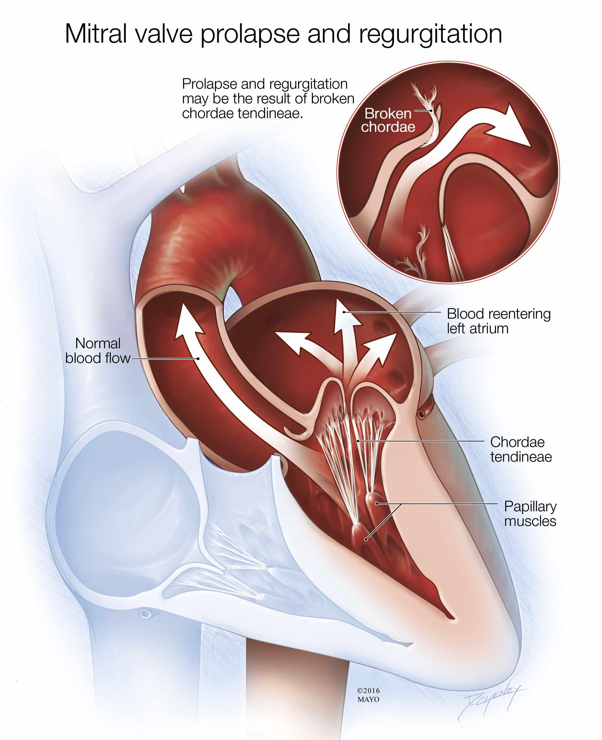 Ilustración médica del prolapso y la regurgitación de la válvula mitral