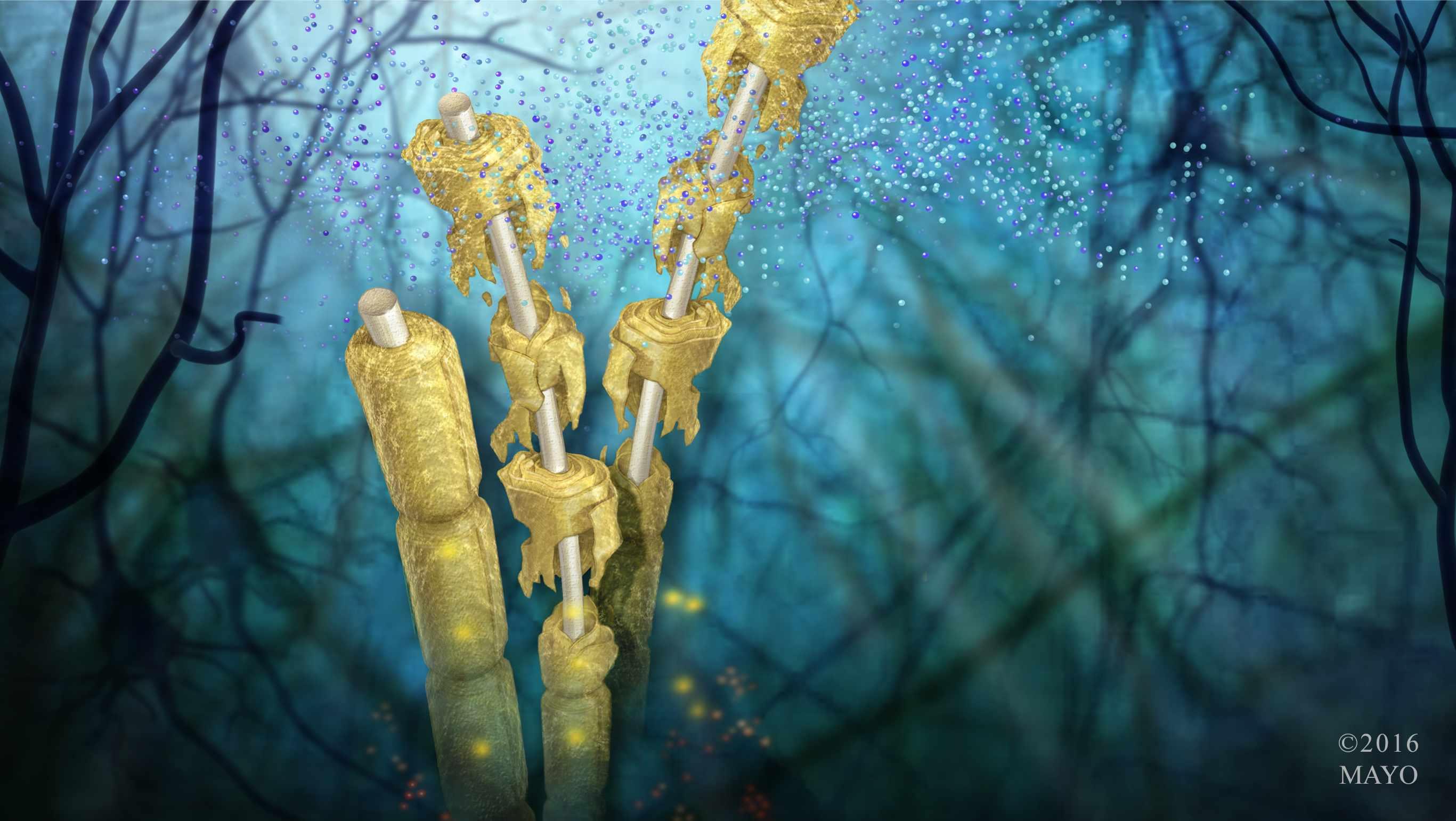 Ilustración del daño de desintegración sufrido por la vaina de mielina que recubre las fibras nerviosas