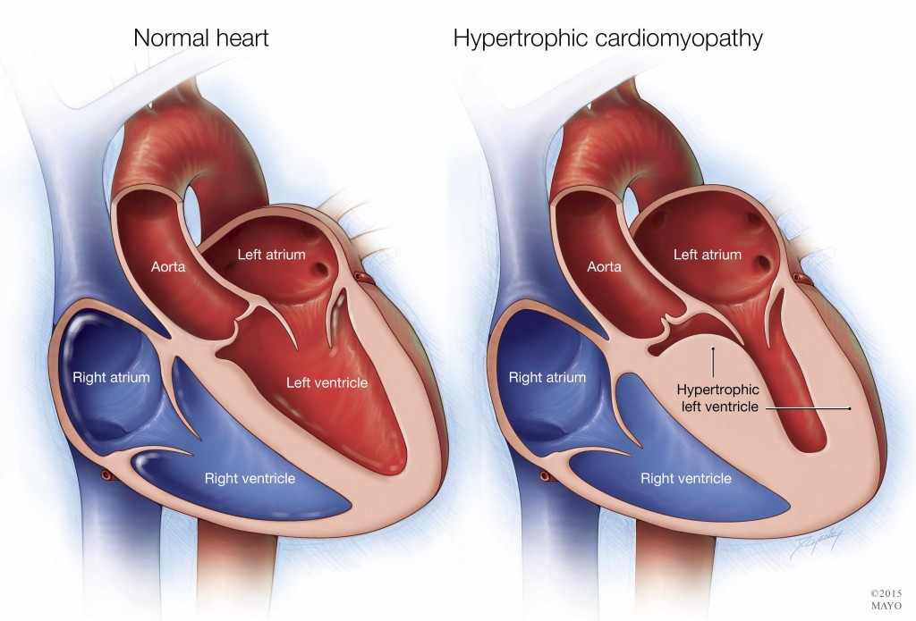 a medical illustration of a normal heart and one with hypertrophic cardiomyopathy