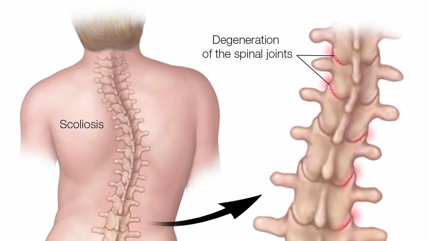 Ilustración médica de una columna con escoliosis donde se resalta la degeneración de las articulaciones de la columna vertebral