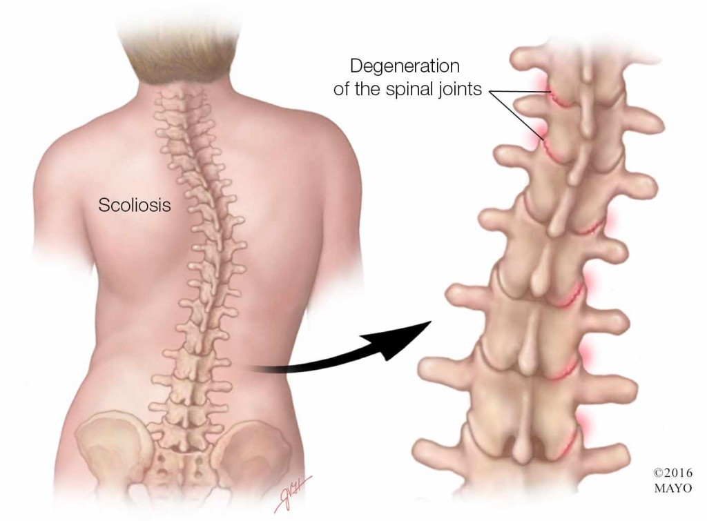 a medical illustration of a spine with scoliosis, highlighting degeneration of the spinal joints
