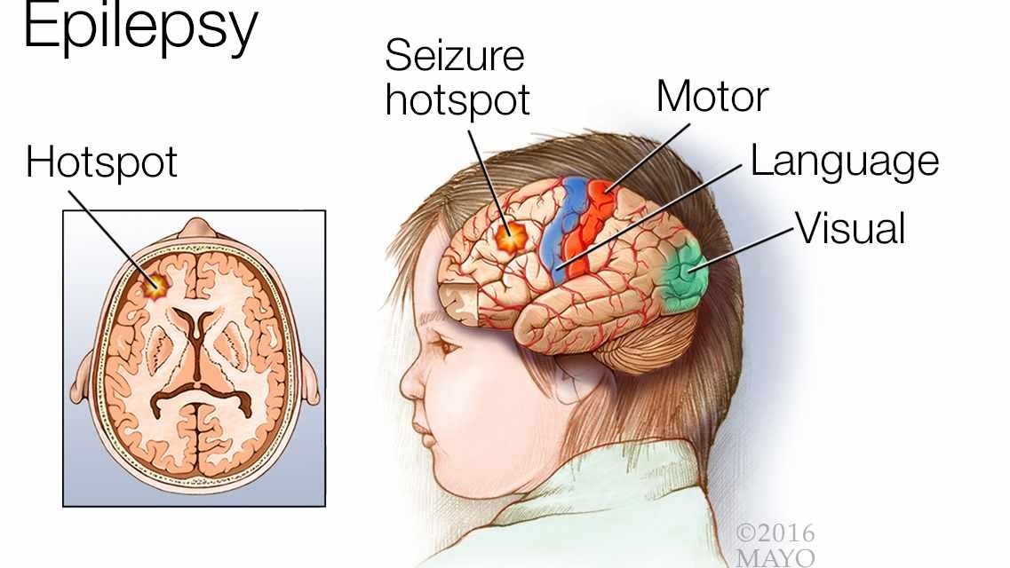ilustración médica de un cerebro con epilepsia, de un punto álgido de convulsiones y de las áreas motora, del lenguaje y de la visión
