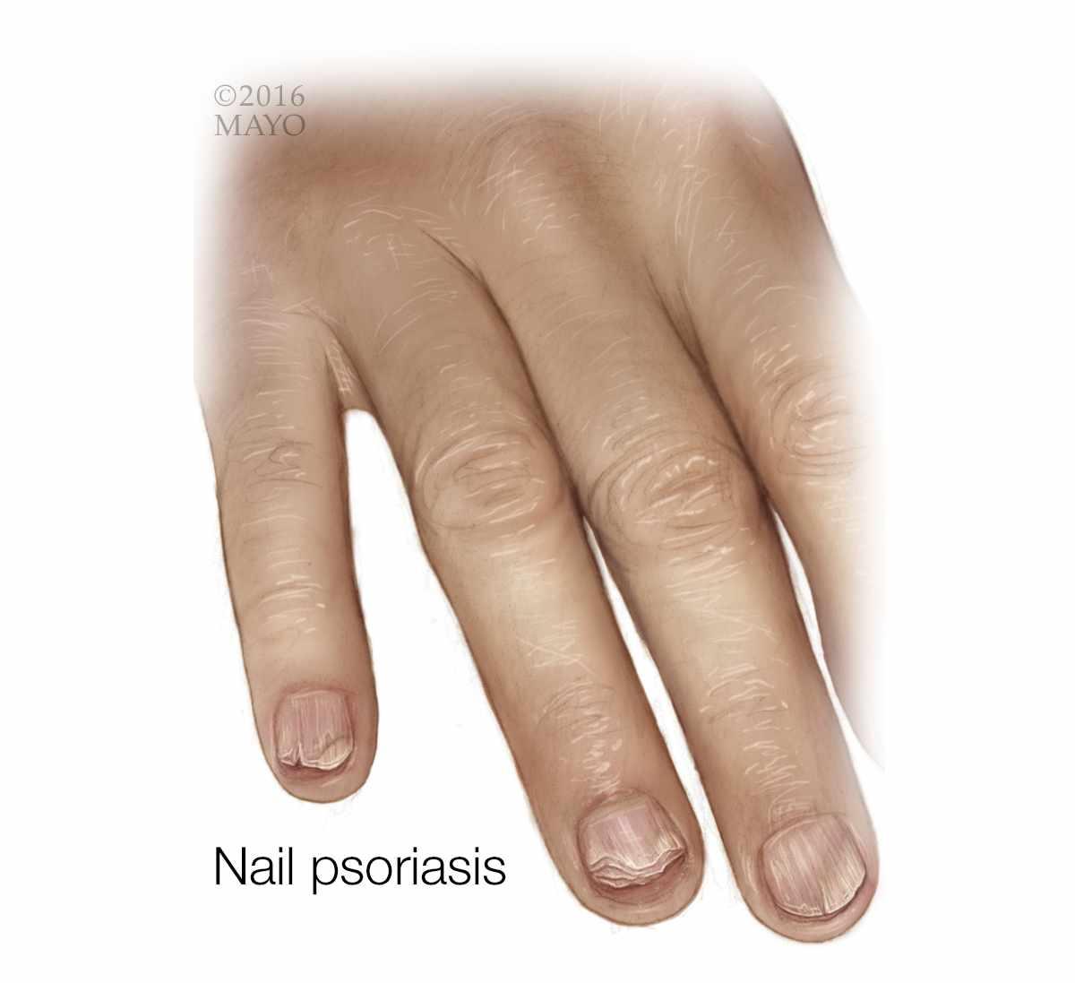 Ilustración médica de psoriasis en la uña