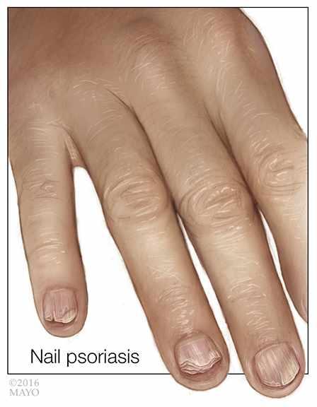 medical illustration of fingernail psoriasis_72 (original)