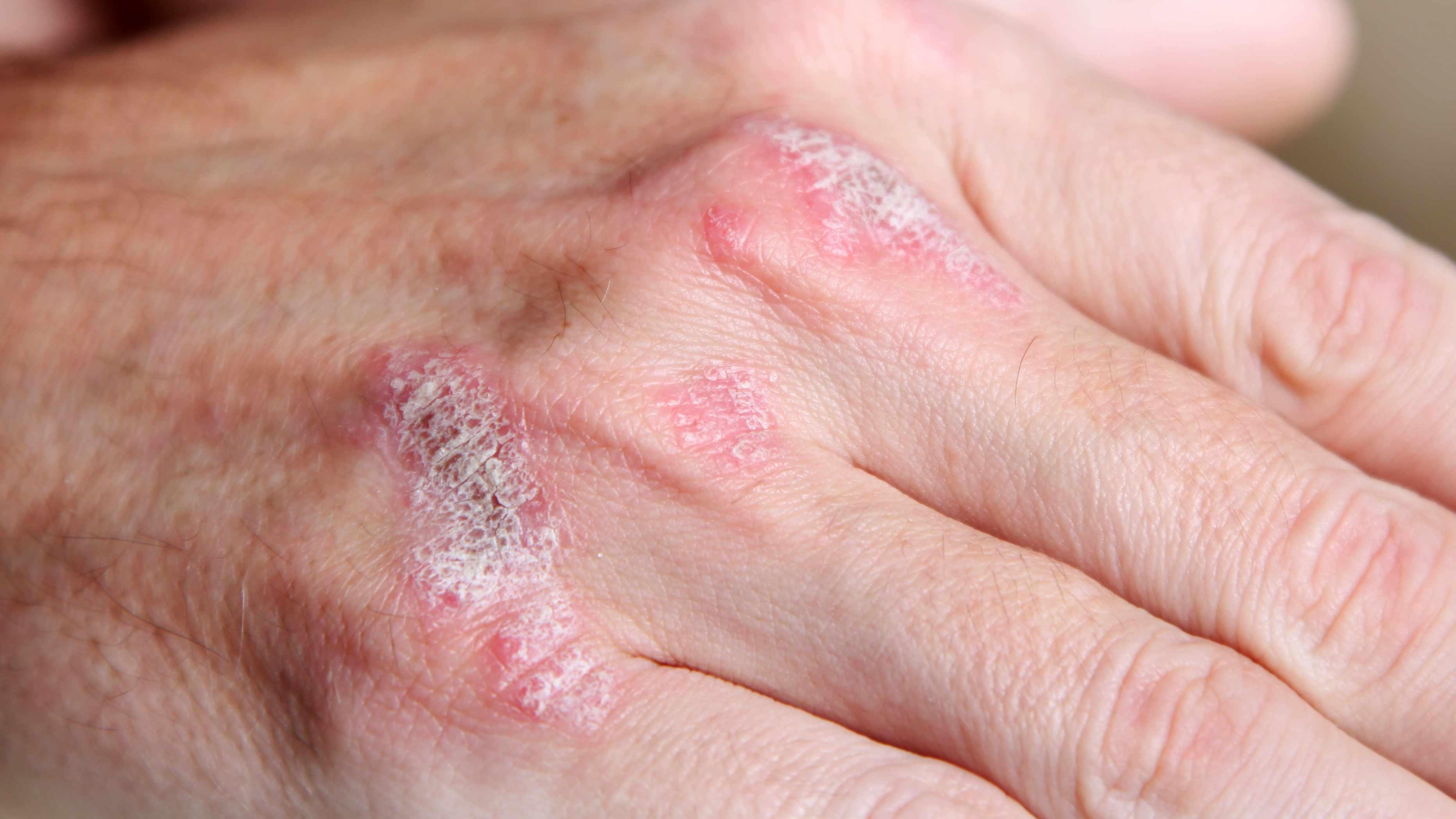 Psoriasis en la mano de una persona, con enrojecimiento, inflamación, sequedad e irritación.