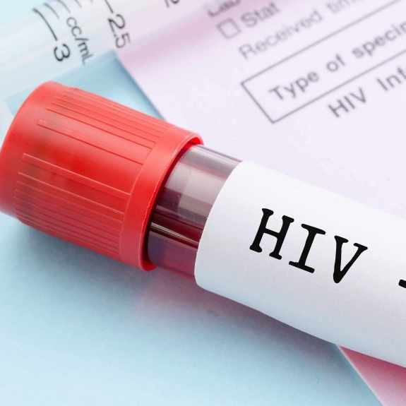 sample blood collection tube with HIV test label on HIV infection screening test form