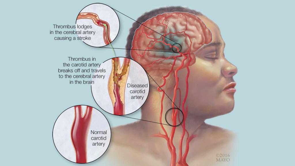 medical illustration depicting stroke
