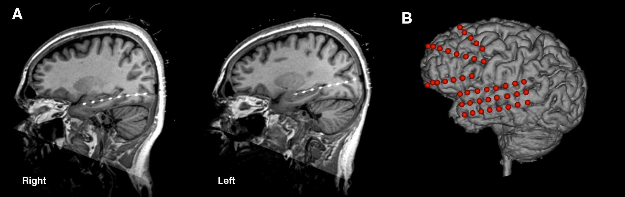MRI of the brain