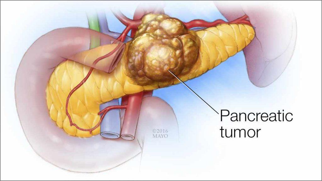 Pancreatic tumor illustration
