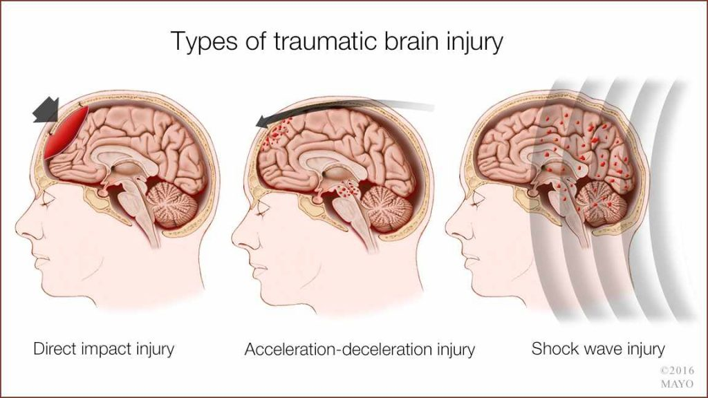 a medical illustration of types of traumatic brain injury