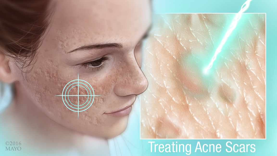 a medical illustration showing acne scars