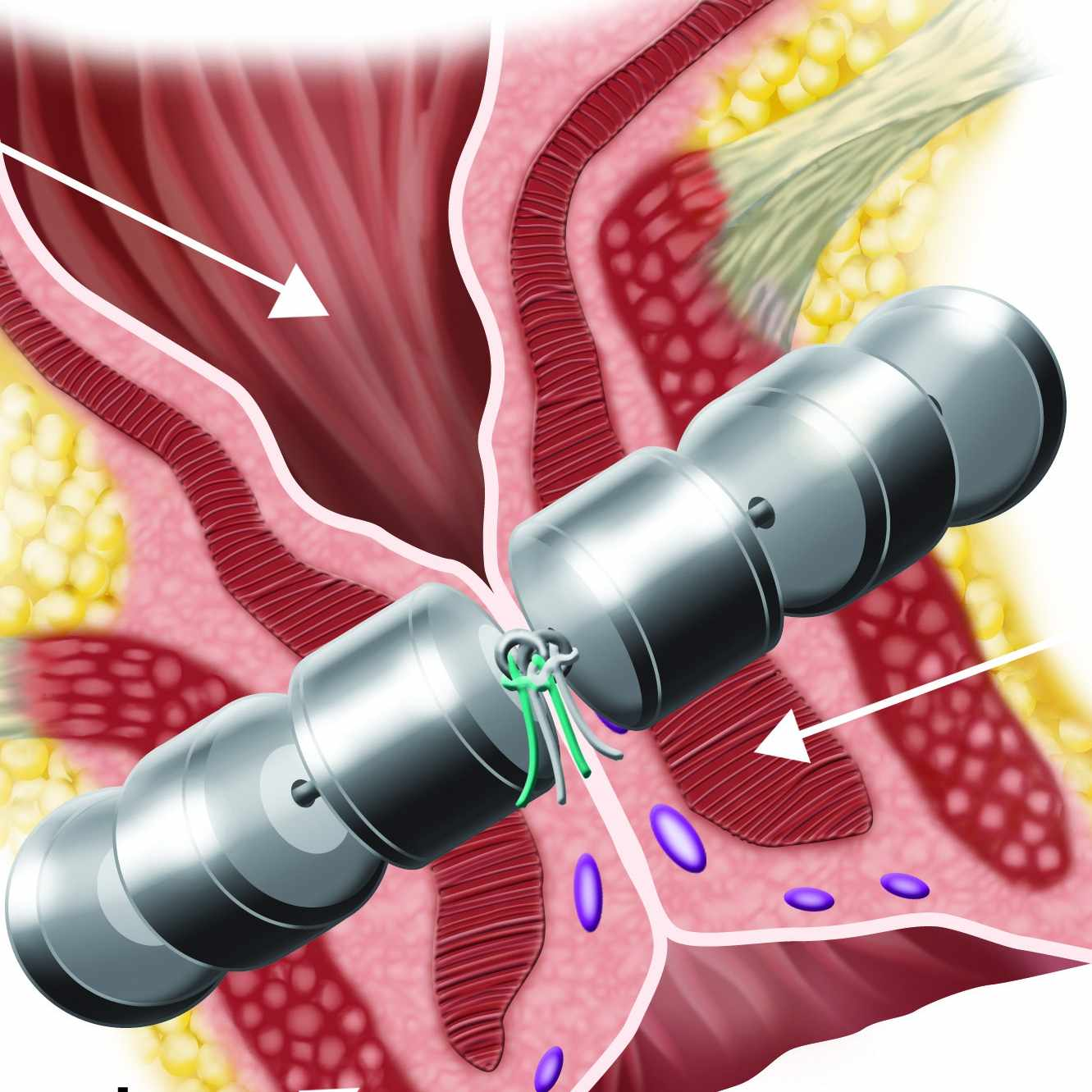 FENIX Device implanted around the anal canal in a closed position