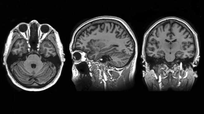 Exploración por IRM del cerebro