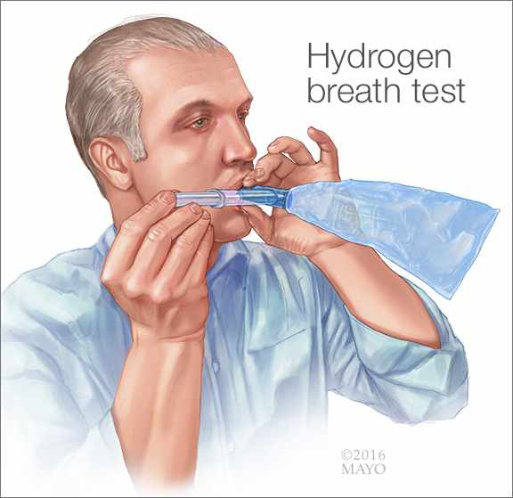Ilustración médica de la prueba de hidrógeno en el aliento para diagnosticar la intolerancia a la lactosa