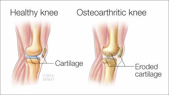 a medical illustration of two knee joints - one healthy, the other with osteoarthritis and erroded cartilage 16X9