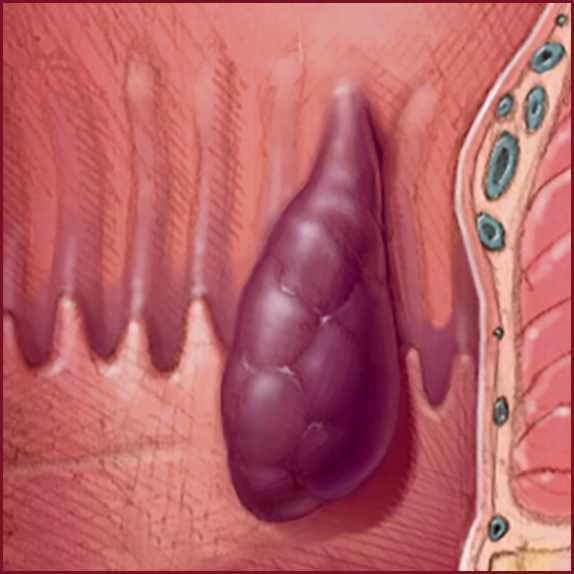 a medical illustration showing an internal hemorrhoid
