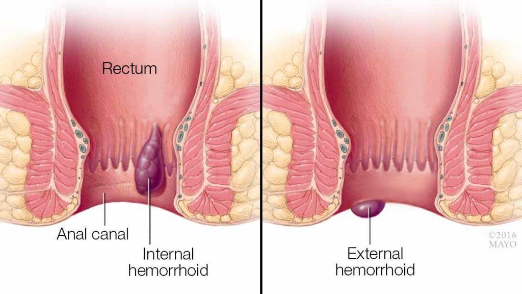 a medical illustration showing internal and external hemorrhoids