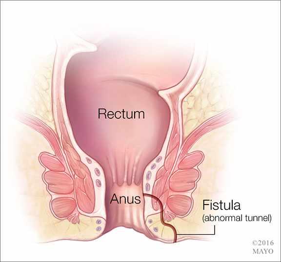 a medical illustration of the rectum, anus and fistula