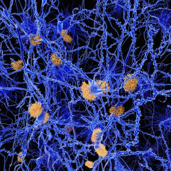 Alzheimer disease, neuron network with amyloid plaques