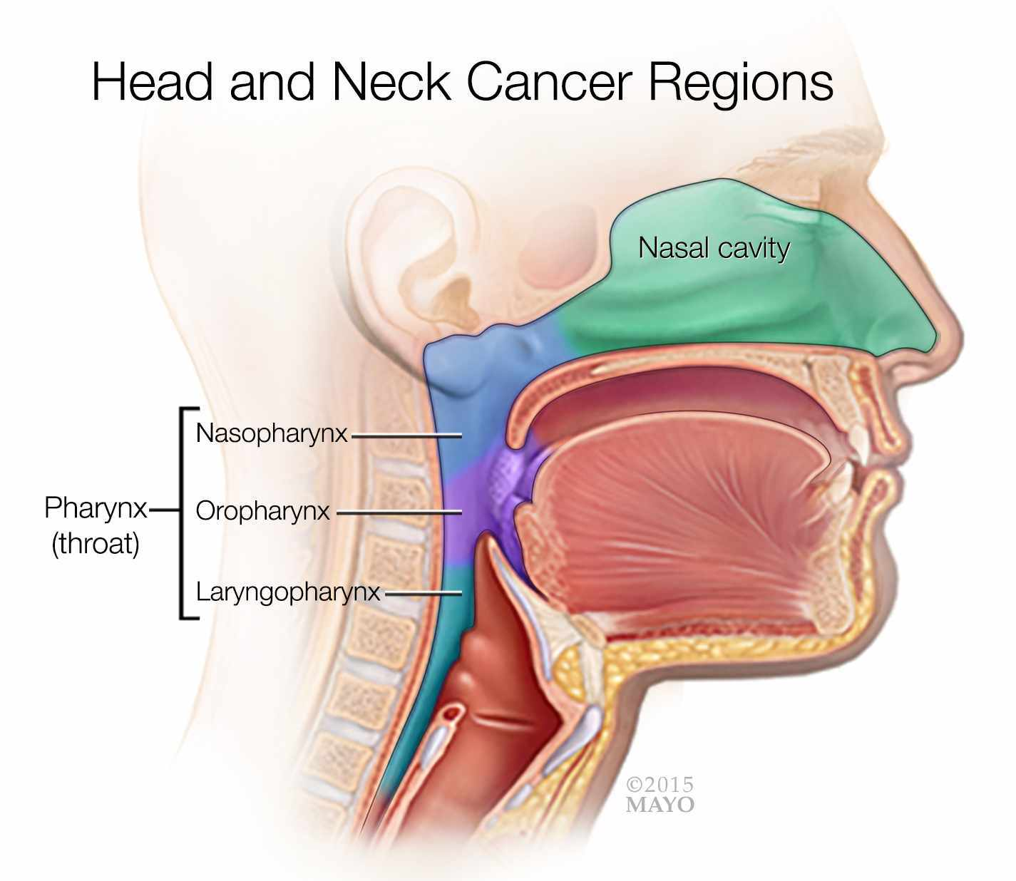a medical illustrations of the head and neck cancer regions