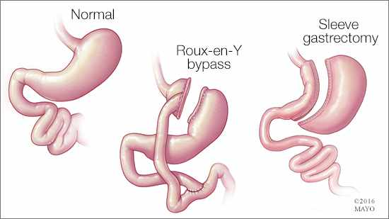 Ilustración médica de los procedimientos de baipás gástrico: un estómago normal (izquierda), uno con un baipás en Y de Roux (centro) y otro con gastrectomía en manga (derecha)