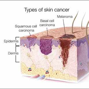 a medical illustration of three types of skin cancer - squamous cell, basal cell and melanoma