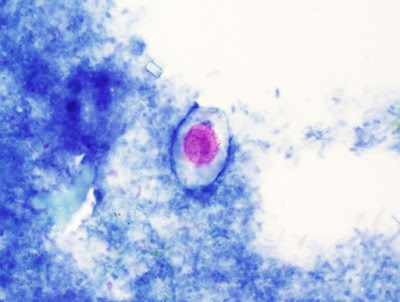 a slide of a parasite from the Parasite Wonders blog