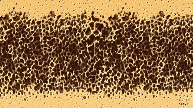 Ilustración médica de un hueso con osteoporosis