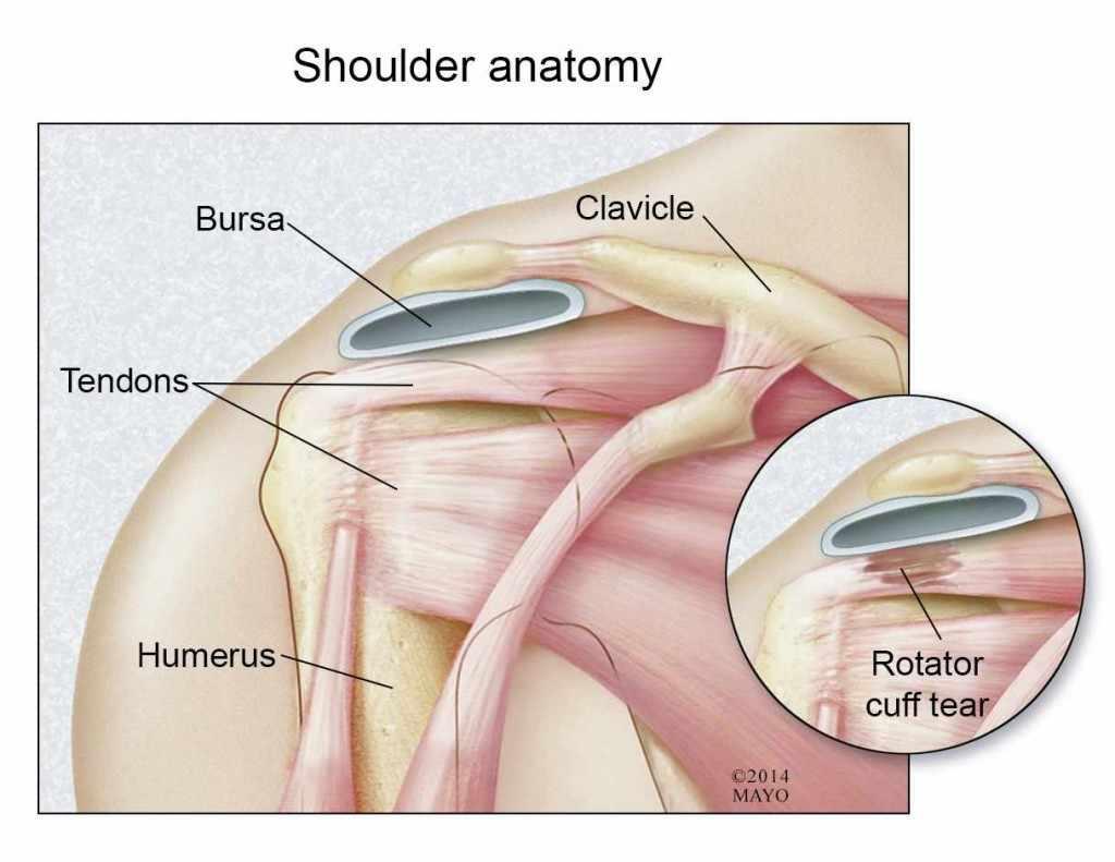 medical illustration of shoulder anatomy including rotator cuff tear