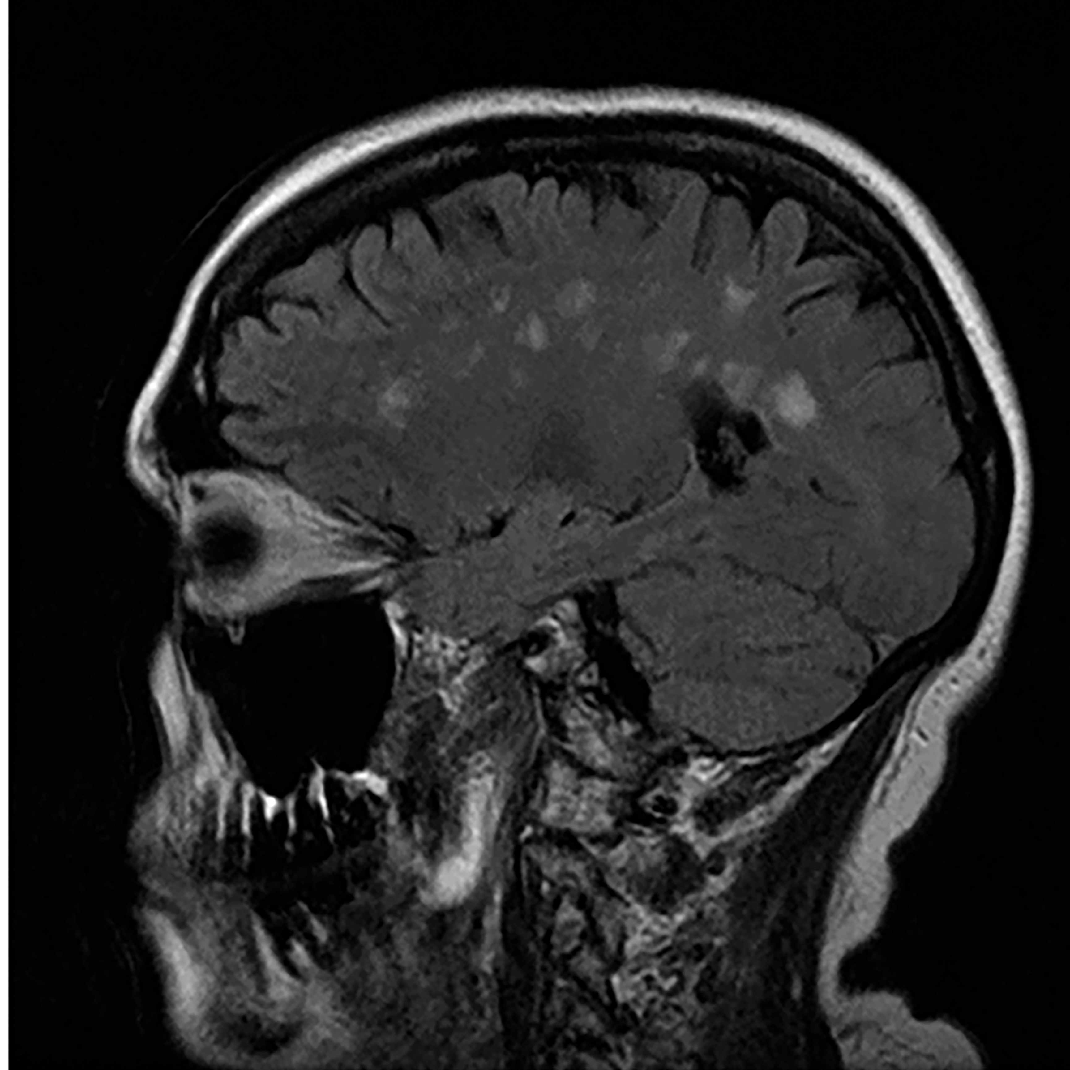 Black and white scan of the profile of a scull and brain