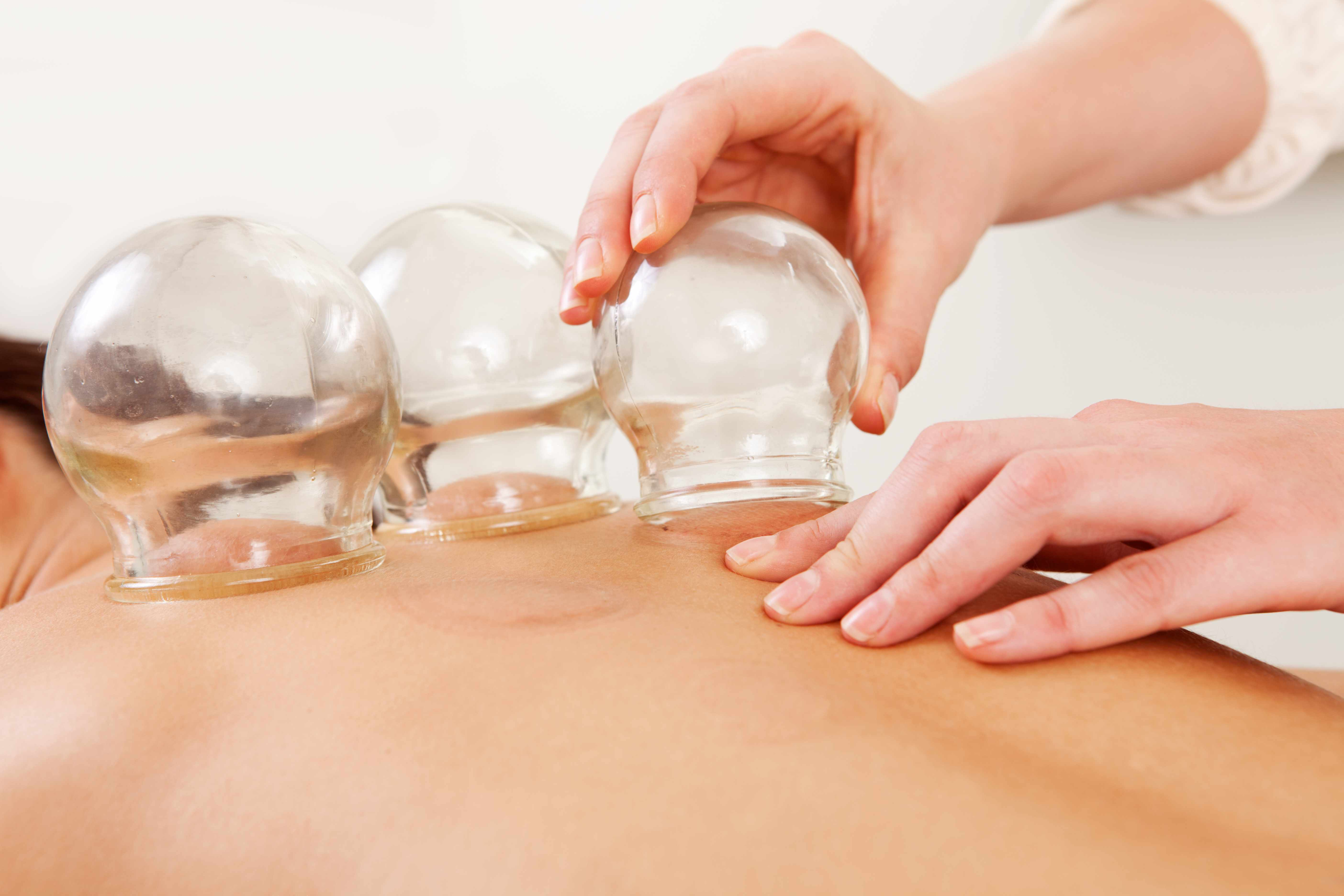 a person doing cupping therapy on someone's back