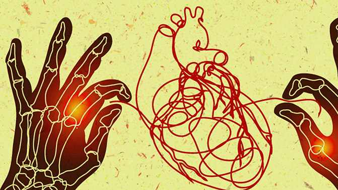 a medical illustration for rheumatoid arthritis and heart disease graphic on Discovery's Edge